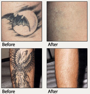6146cca2b6011 Tattoo Removal   MD Skin Therapy